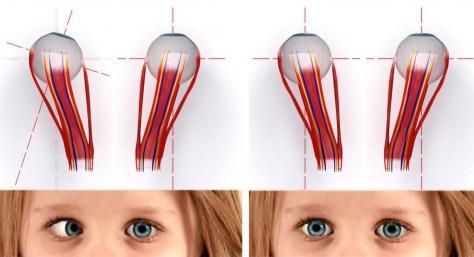 Резь в глазах снижение зрения